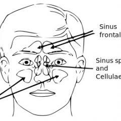 סינוסיטיס – דלקת של מערות הפנים