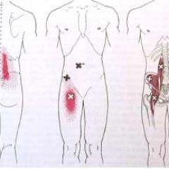 כאבי גב תחתון שונים והטיפול בהם – מזור לכאב