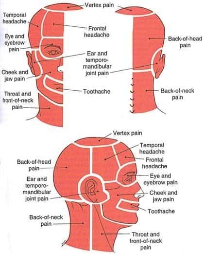 מפת כאבי ראש