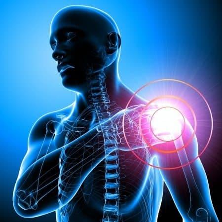 כאב בכתפיים