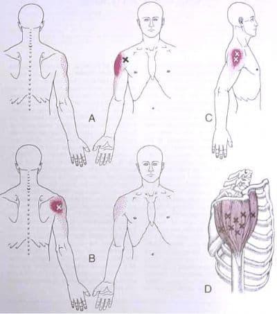 מיקומים שקשורים לכאבי כתף