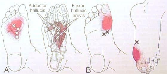 נקודות כאב בכפות הרגליים