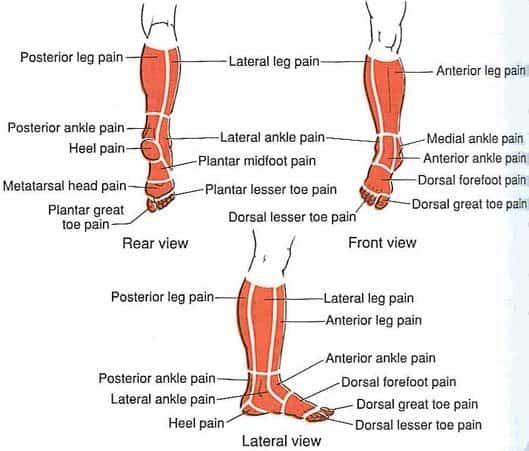 סוגי כאבים ברגליים