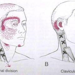 כאבי ראש, מיגרנה – לחיות מחדש