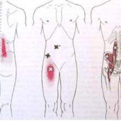 כאבי גב תחתון שונים והטיפול בהם