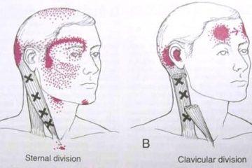 טיפול בפיברומיאלגיה –האם אפשר ללא תרופות ?